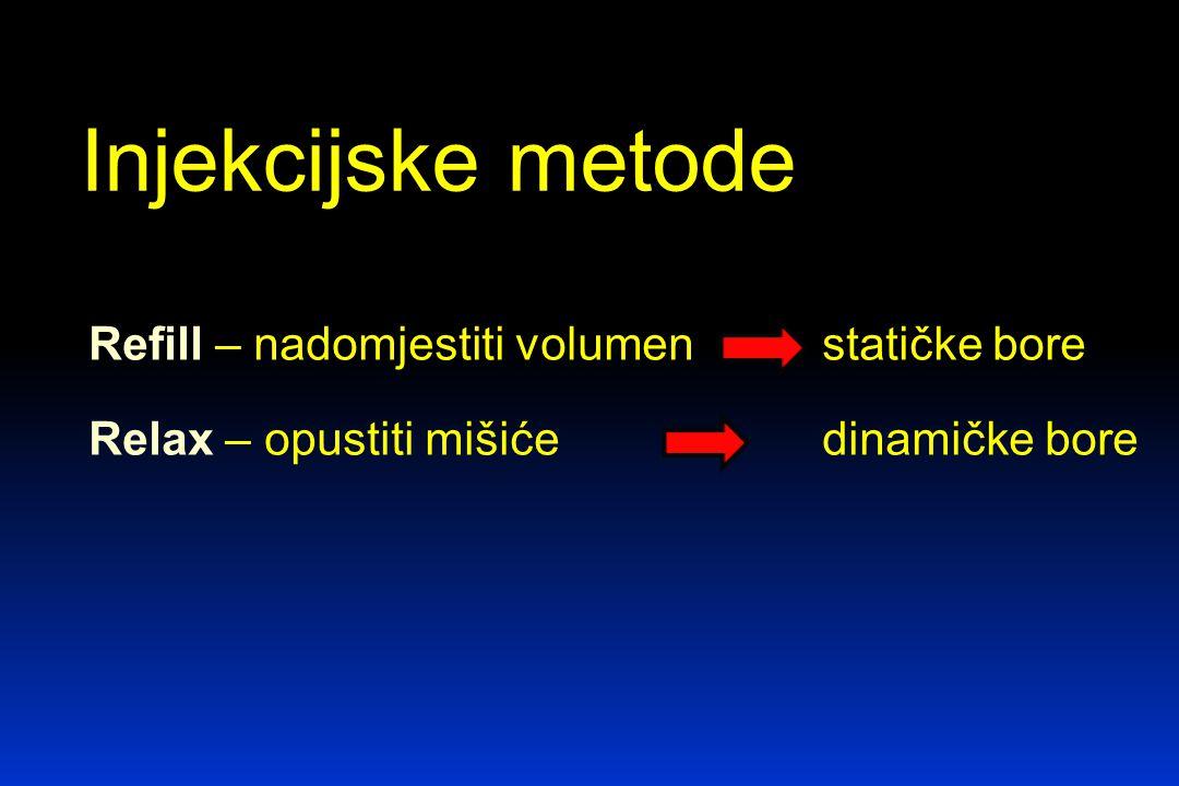 Injekcijske metode Refill – nadomjestiti volumen statičke bore Relax – opustiti mišiće dinamičke bore