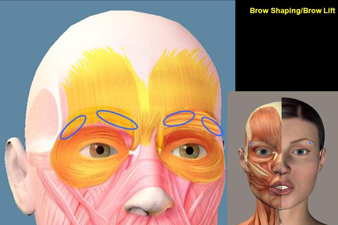 Brow Shaping/Brow Lift