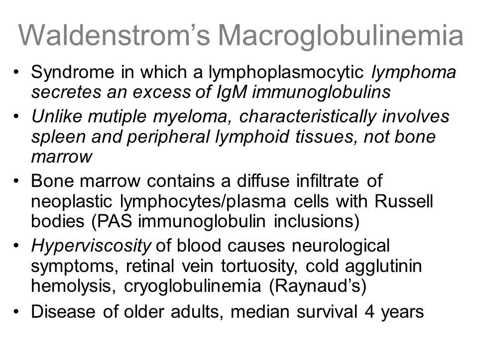 Waldenstrom's Macroglobulinemia Syndrome in which a lymphoplasmocytic lymphoma secretes an excess of IgM immunoglobulins Unlike mutiple myeloma, chara
