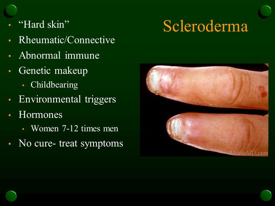 Scleroderma Hard skin Rheumatic/Connective Abnormal immune Genetic makeup Childbearing Environmental triggers Hormones Women 7-12 times men No cure- treat symptoms