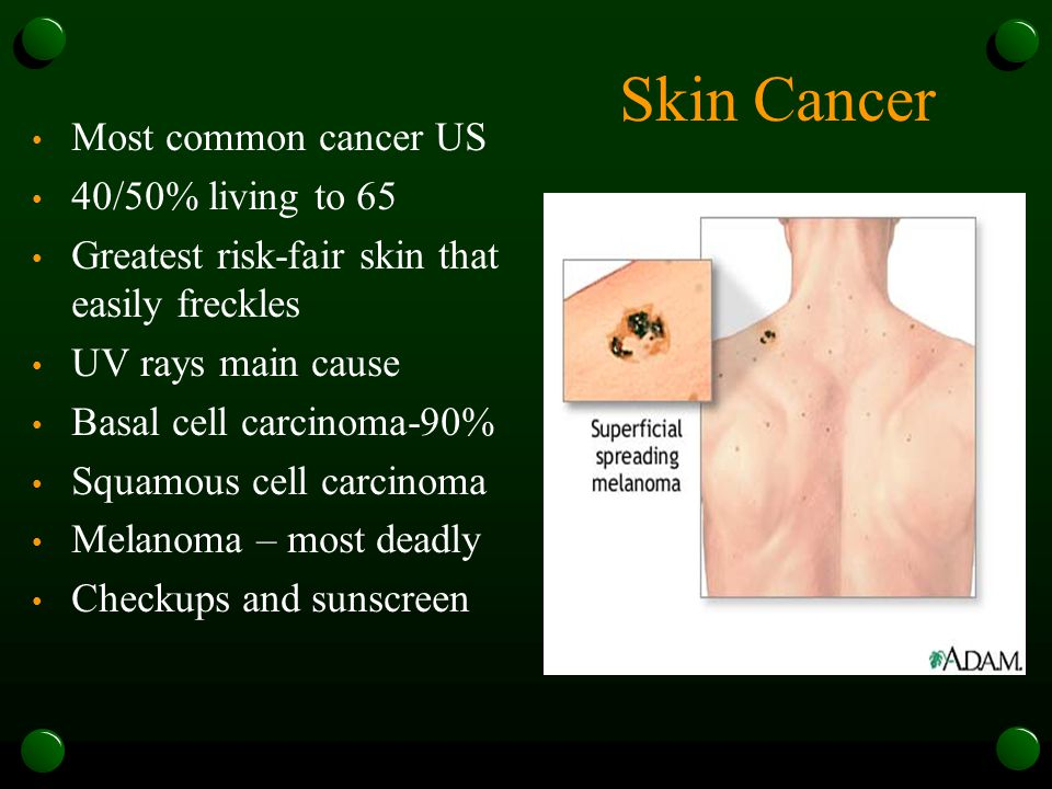 Skin Cancer Most common cancer US 40/50% living to 65 Greatest risk-fair skin that easily freckles UV rays main cause Basal cell carcinoma-90% Squamous cell carcinoma Melanoma – most deadly Checkups and sunscreen