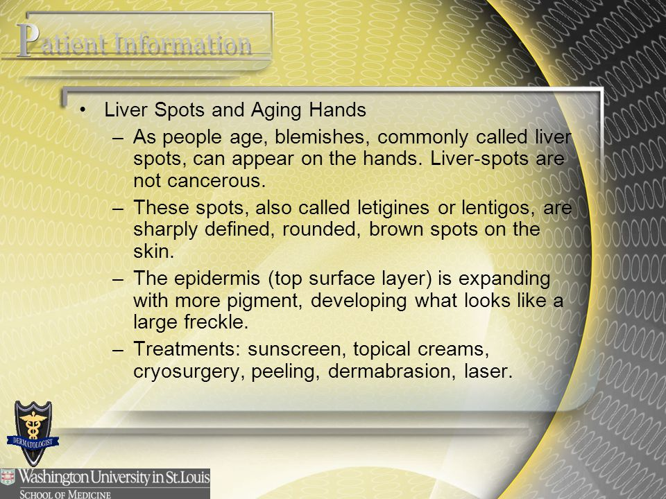 Liver Spots and Aging Hands –As people age, blemishes, commonly called liver spots, can appear on the hands. Liver-spots are not cancerous. –These spo