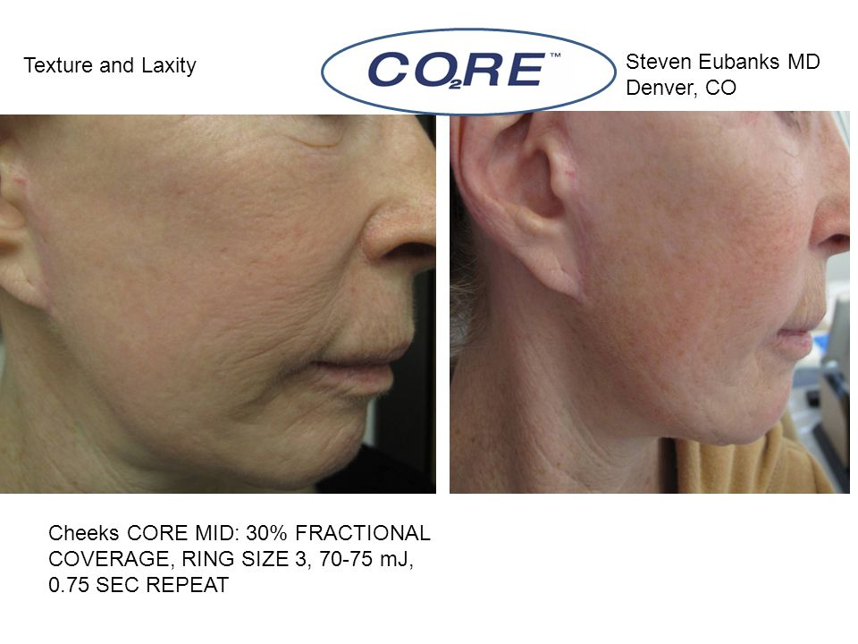 Cheeks CORE MID: 30% FRACTIONAL COVERAGE, RING SIZE 3, 70-75 mJ, 0.75 SEC REPEAT Texture and Laxity Steven Eubanks MD Denver, CO