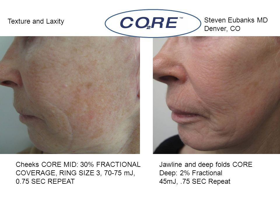 Cheeks CORE MID: 30% FRACTIONAL COVERAGE, RING SIZE 3, 70-75 mJ, 0.75 SEC REPEAT Texture and Laxity Jawline and deep folds CORE Deep: 2% Fractional 45