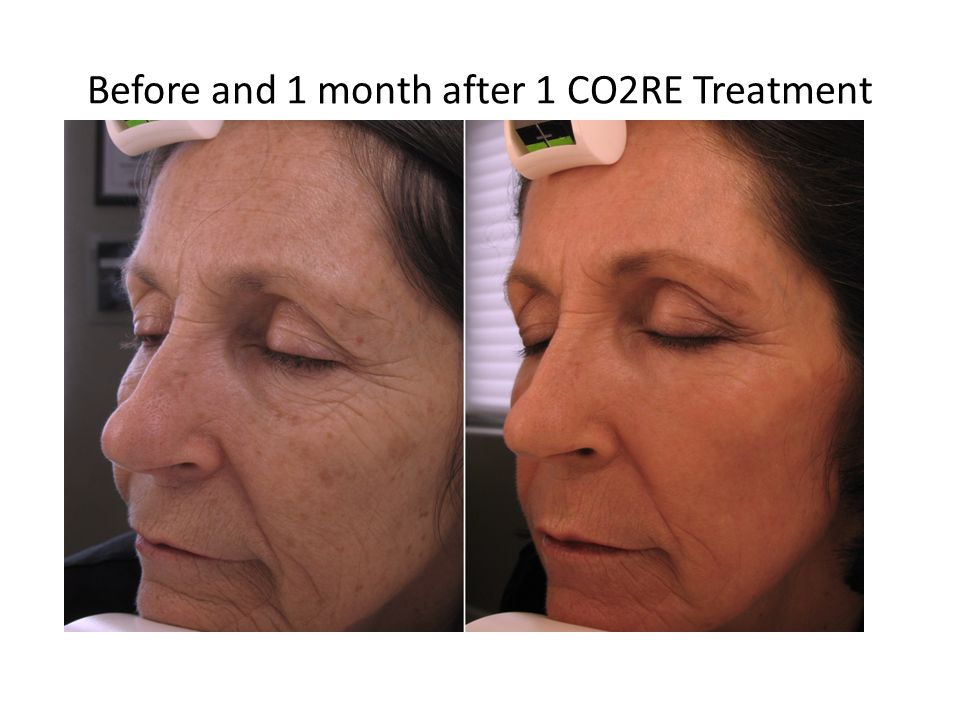 Before Post Treatment Clinical Results Fusion: 40% fractional coverage, Ring 1, 50mJ, CO2RE 70mJ