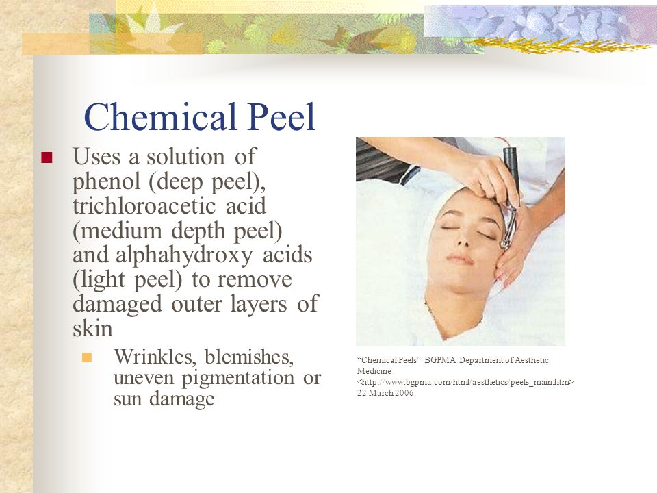 Chemical Peel Uses a solution of phenol (deep peel), trichloroacetic acid (medium depth peel) and alphahydroxy acids (light peel) to remove damaged outer layers of skin Wrinkles, blemishes, uneven pigmentation or sun damage Chemical Peels BGPMA Department of Aesthetic Medicine 22 March 2006.