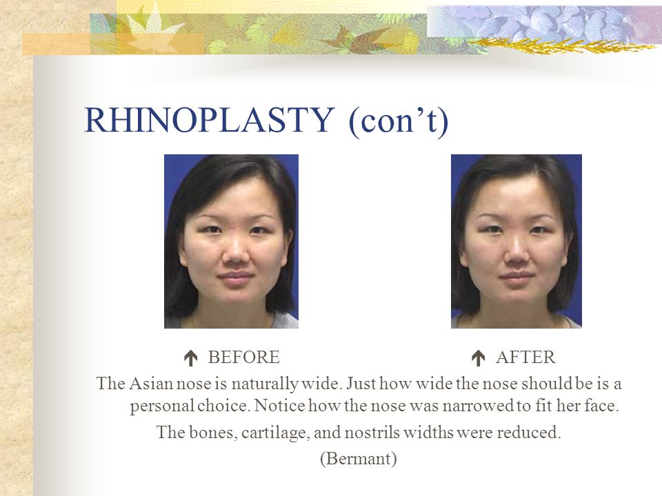 RHINOPLASTY (con't)  BEFORE  AFTER The Asian nose is naturally wide.