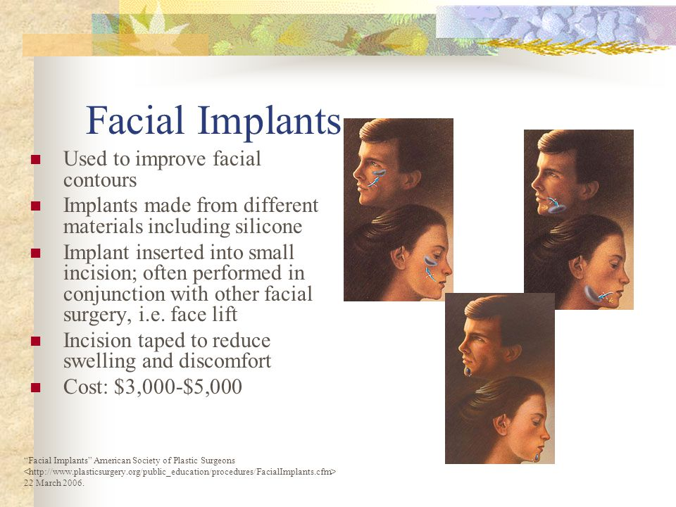 FACIAL PROCEDURES Botox Botulinum toxin injected into muscles to paralyze them 4 - 12 months $375 US Chemical Peel liquid mixture of alpha-hydroxy acids exfoliates and unclog pores $600 US per treatment