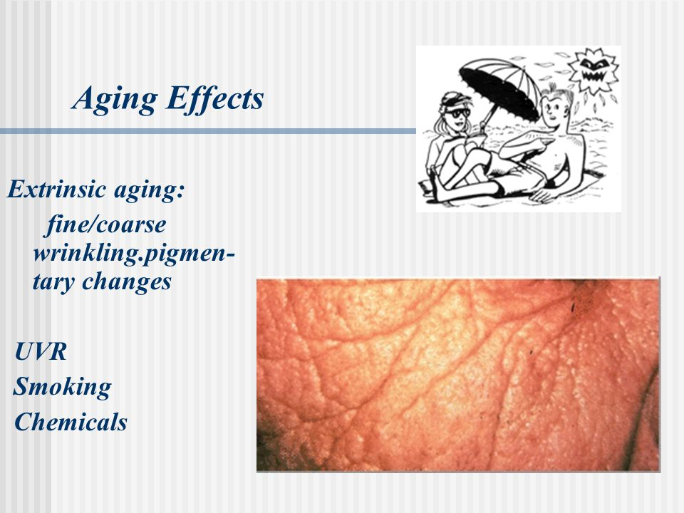 Aging Effects Extrinsic aging: fine/coarse wrinkling.pigmen- tary changes UVR Smoking Chemicals