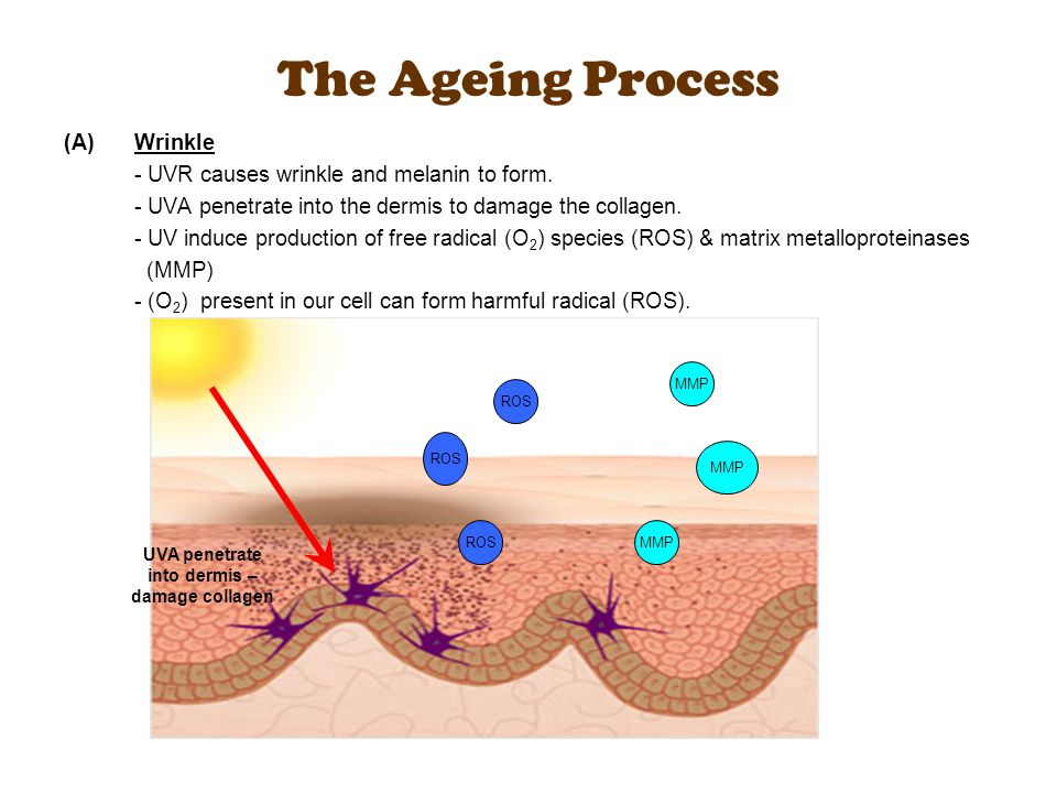 (A)Wrinkle - UVR causes wrinkle and melanin to form. - UVA penetrate into the dermis to damage the collagen. - UV induce production of free radical (O