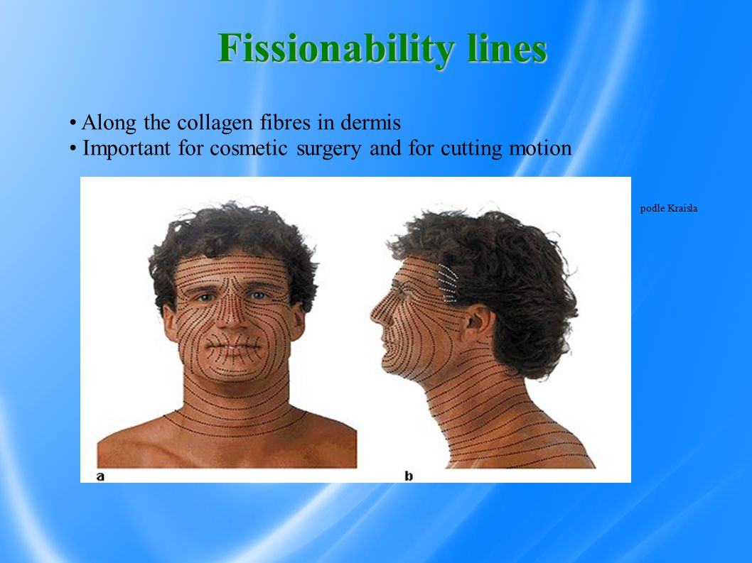 Fissionability lines podle Kraisla Along the collagen fibres in dermis Important for cosmetic surgery and for cutting motion