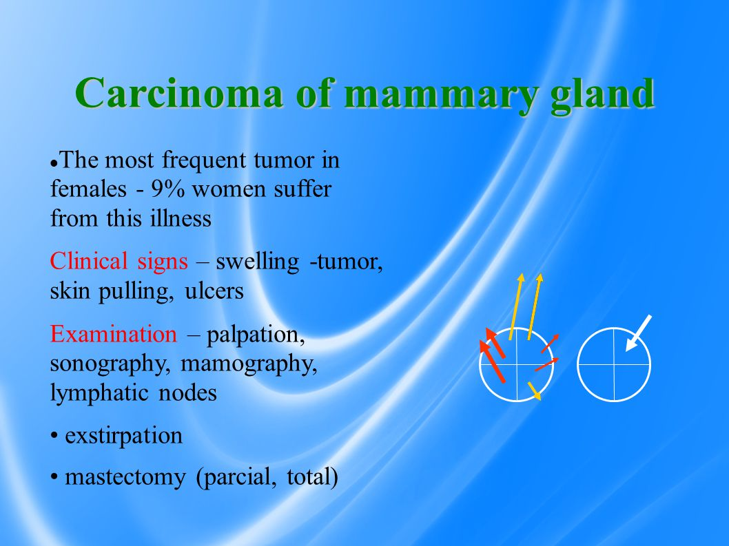 Carcinoma of mammary gland The most frequent tumor in females - 9% women suffer from this illness Clinical signs – swelling -tumor, skin pulling, ulcers Examination – palpation, sonography, mamography, lymphatic nodes exstirpation mastectomy (parcial, total)