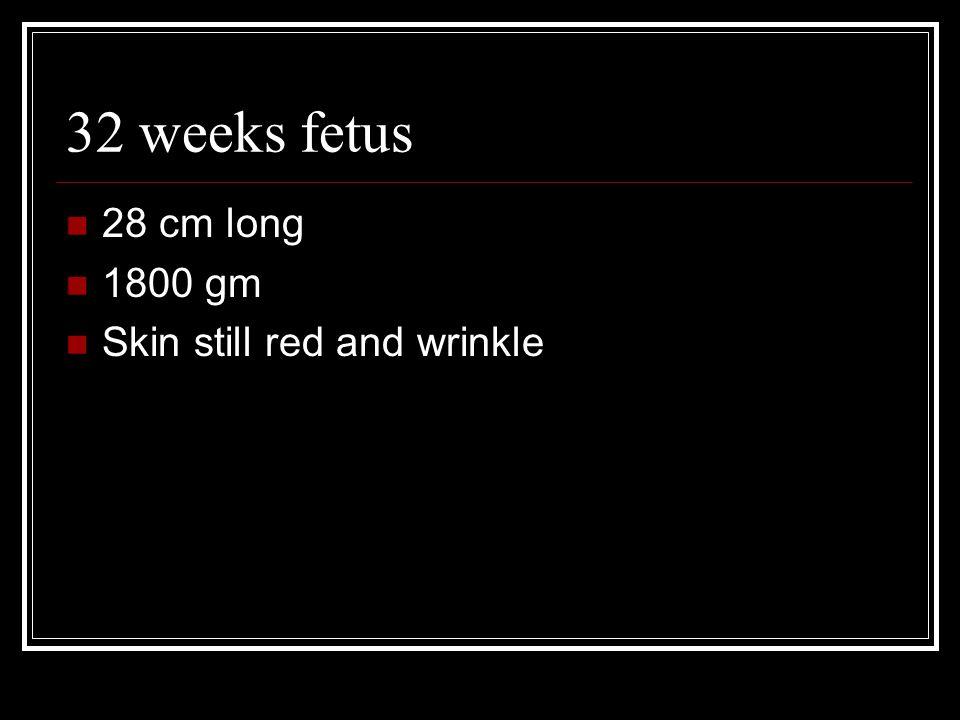 32 weeks fetus 28 cm long 1800 gm Skin still red and wrinkle