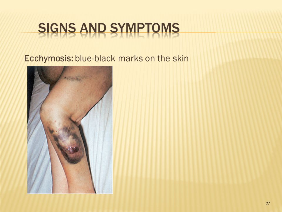 27 Ecchymosis: blue-black marks on the skin