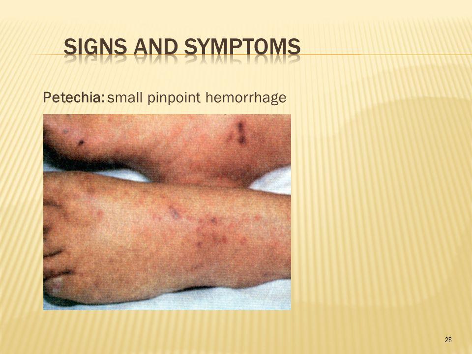 28 Petechia: small pinpoint hemorrhage