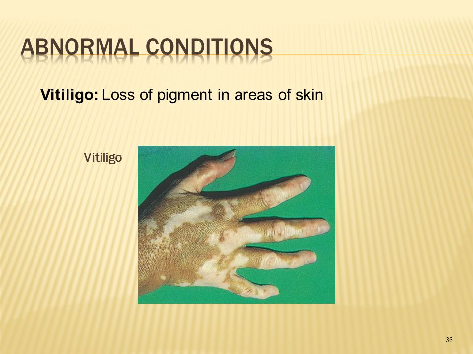 36 Vitiligo Vitiligo: Loss of pigment in areas of skin