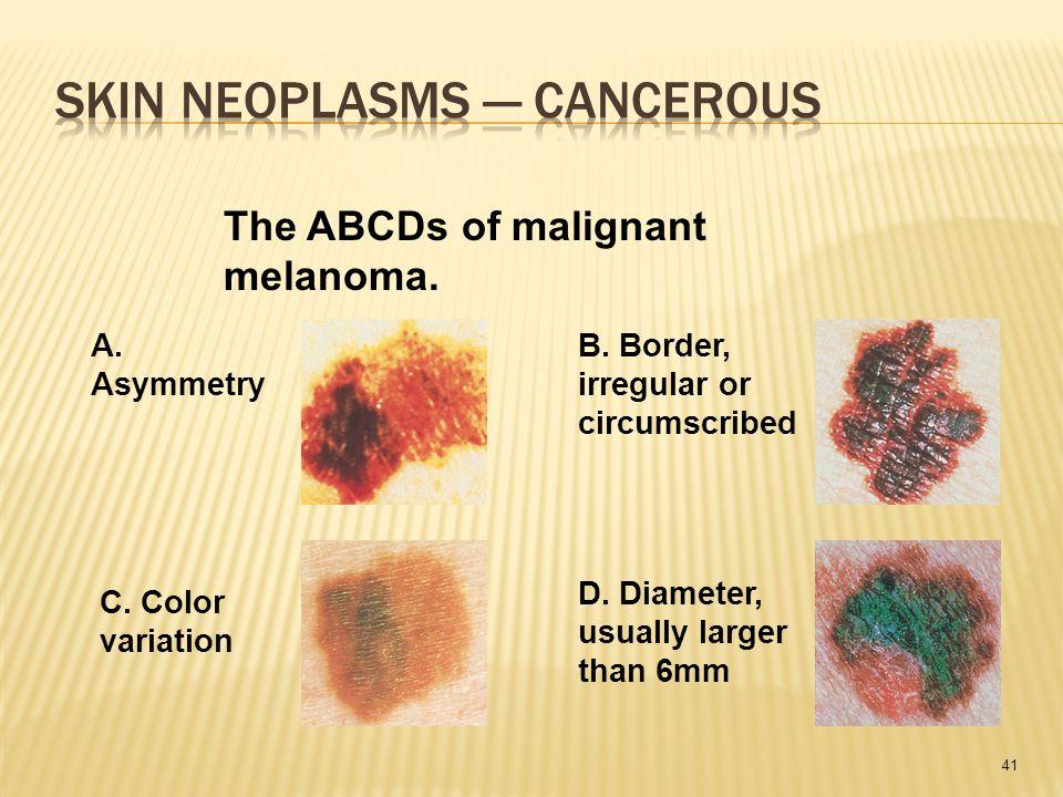 41 The ABCDs of malignant melanoma. A. Asymmetry B.
