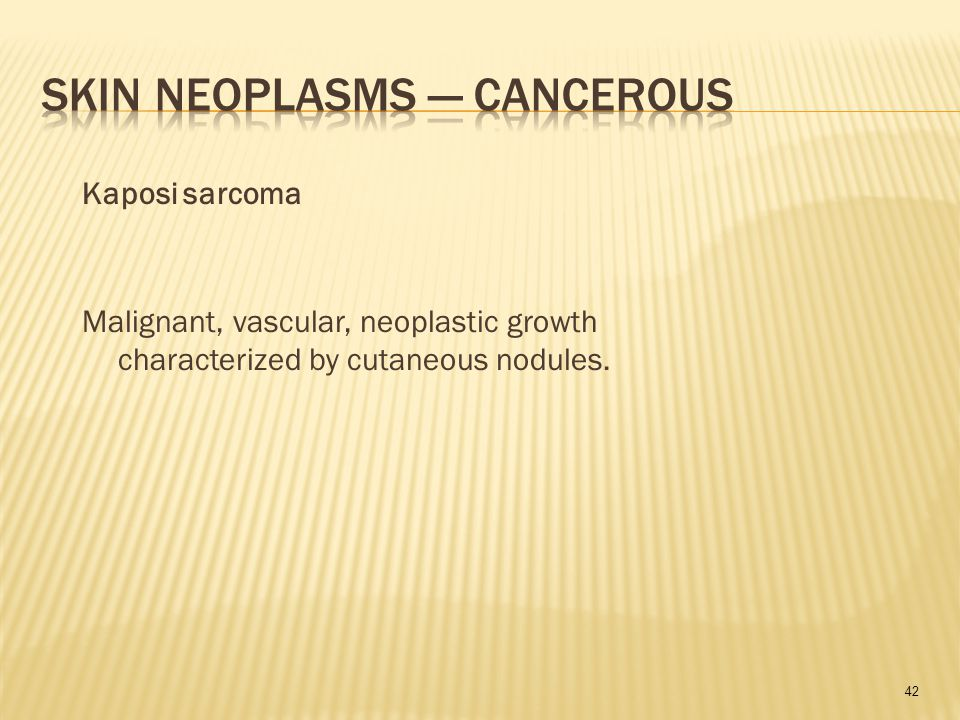 42 Malignant, vascular, neoplastic growth characterized by cutaneous nodules. Kaposi sarcoma