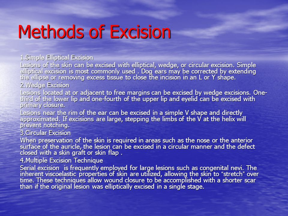 Methods of Excision 1.Simple Elliptical Excision Lesions of the skin can be excised with elliptical, wedge, or circular excision. Simple elliptical ex