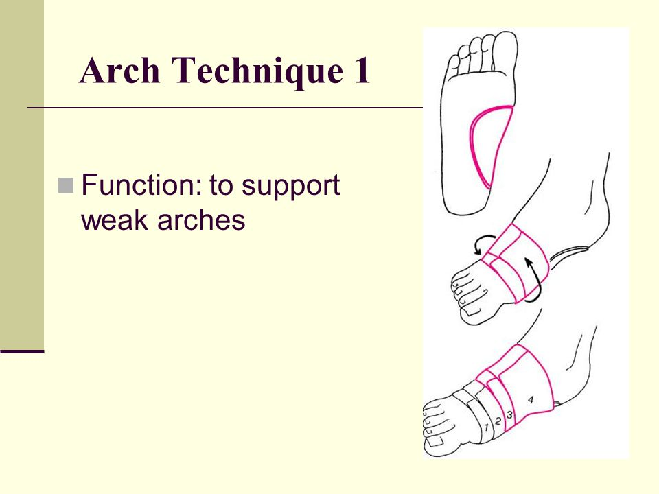 Arch Technique 1 Function: to support weak arches
