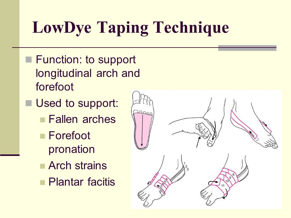 LowDye Taping Technique ( Function: to support longitudinal arch and forefoot Used to support: Fallen arches Forefoot pronation Arch strains Plantar facitis