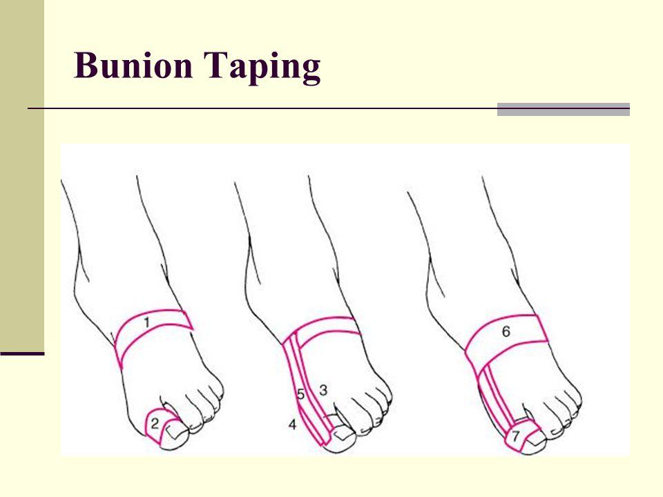 Bunion Taping