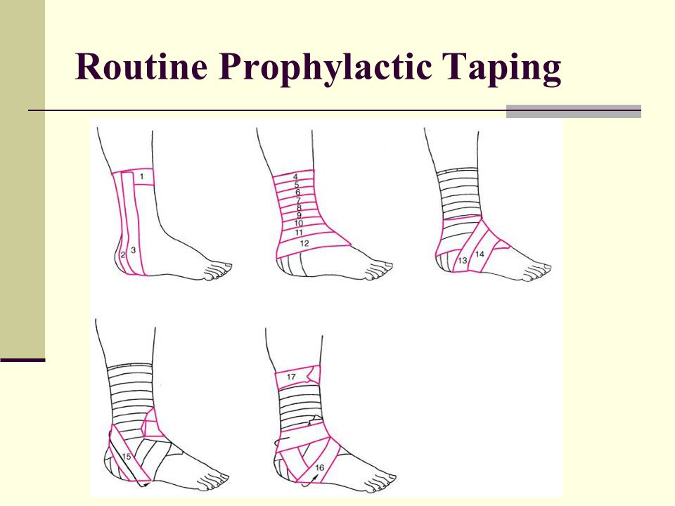 Routine Prophylactic Taping