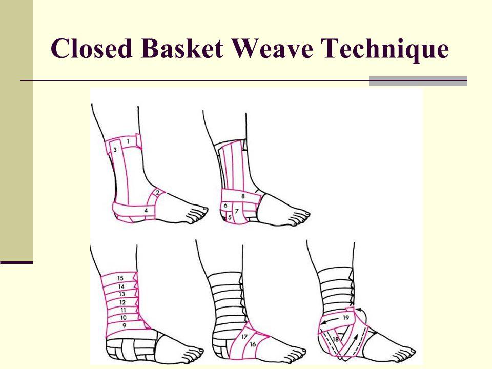 Closed Basket Weave Technique