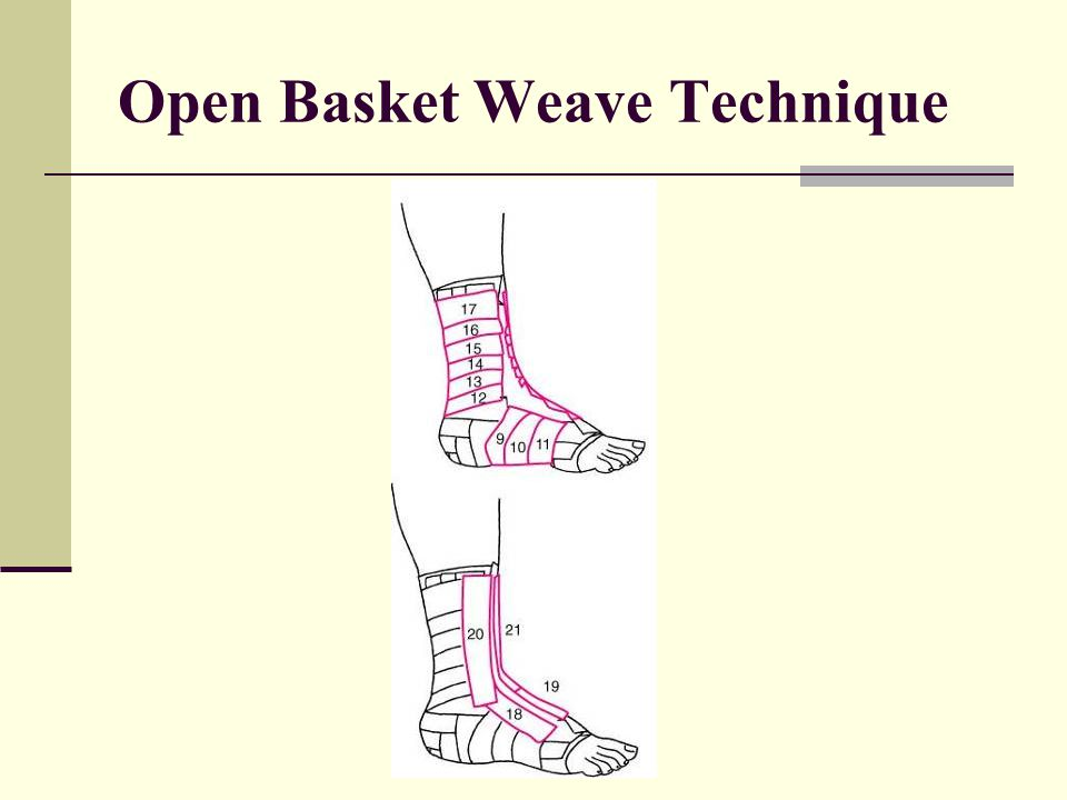 Open Basket Weave Technique