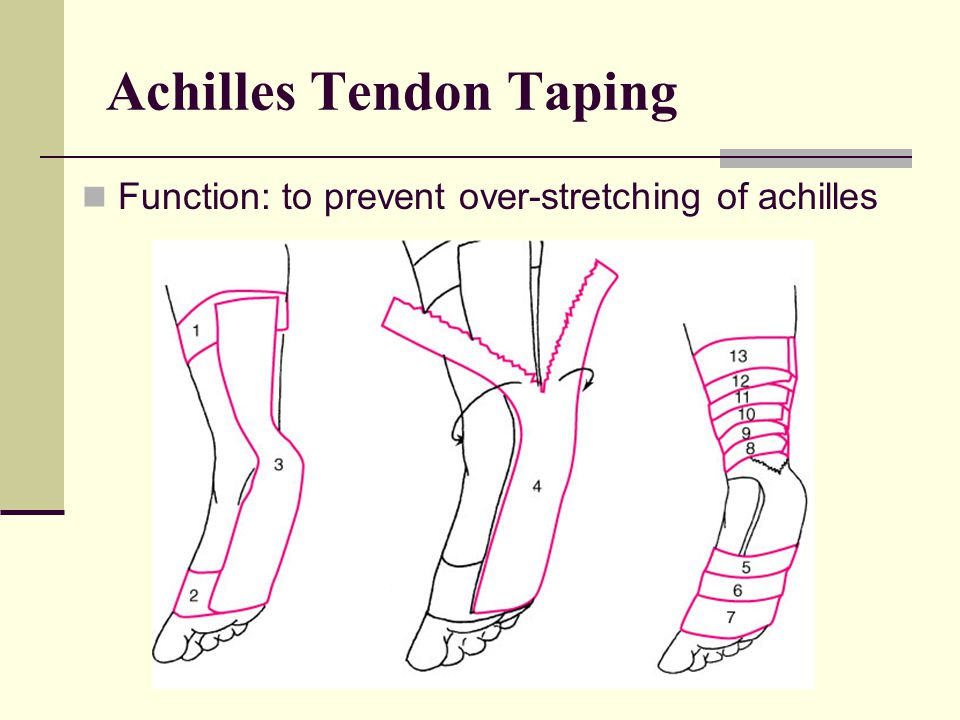 Achilles Tendon Taping Function: to prevent over-stretching of achilles