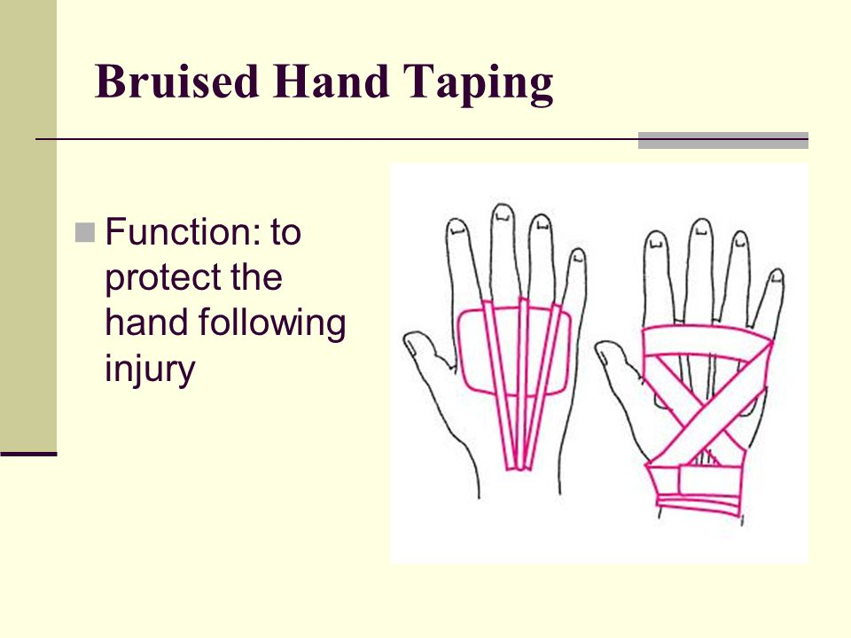 Bruised Hand Taping Function: to protect the hand following injury