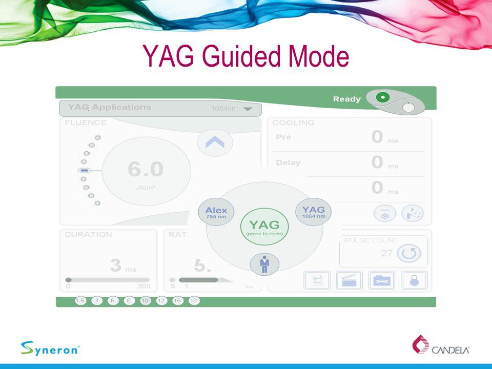 YAG Guided Mode