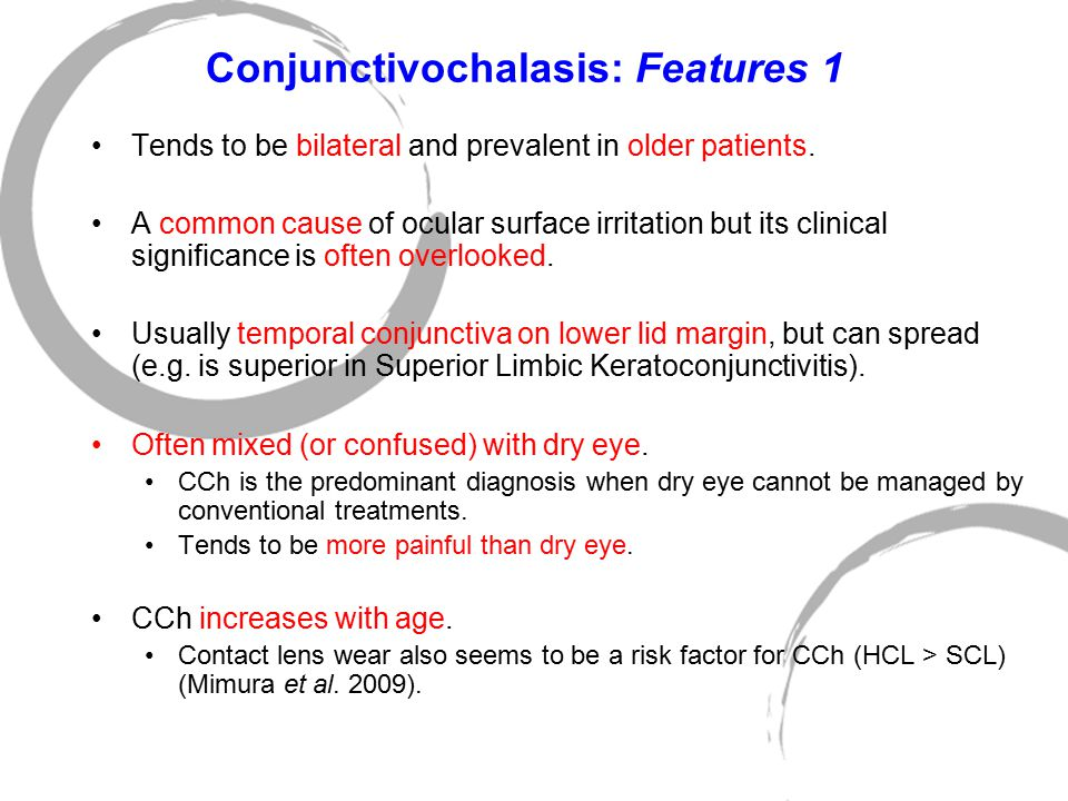 Conjunctivochalasis: Features 1 Tends to be bilateral and prevalent in older patients. A common cause of ocular surface irritation but its clinical si