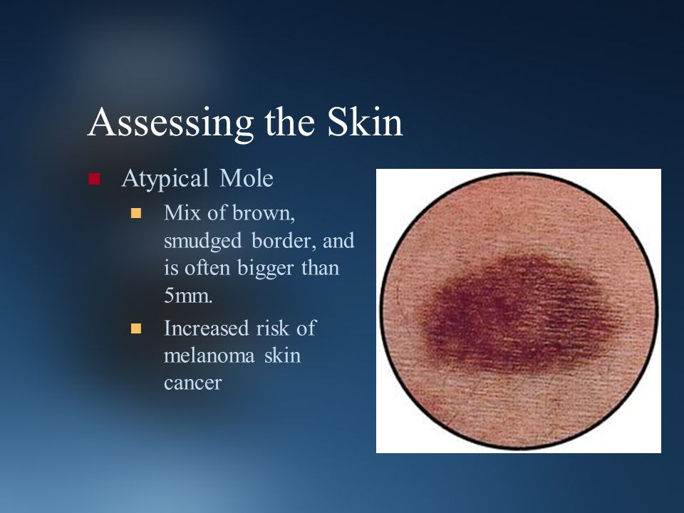 Assessing the Skin Atypical Mole Mix of brown, smudged border, and is often bigger than 5mm. Increased risk of melanoma skin cancer