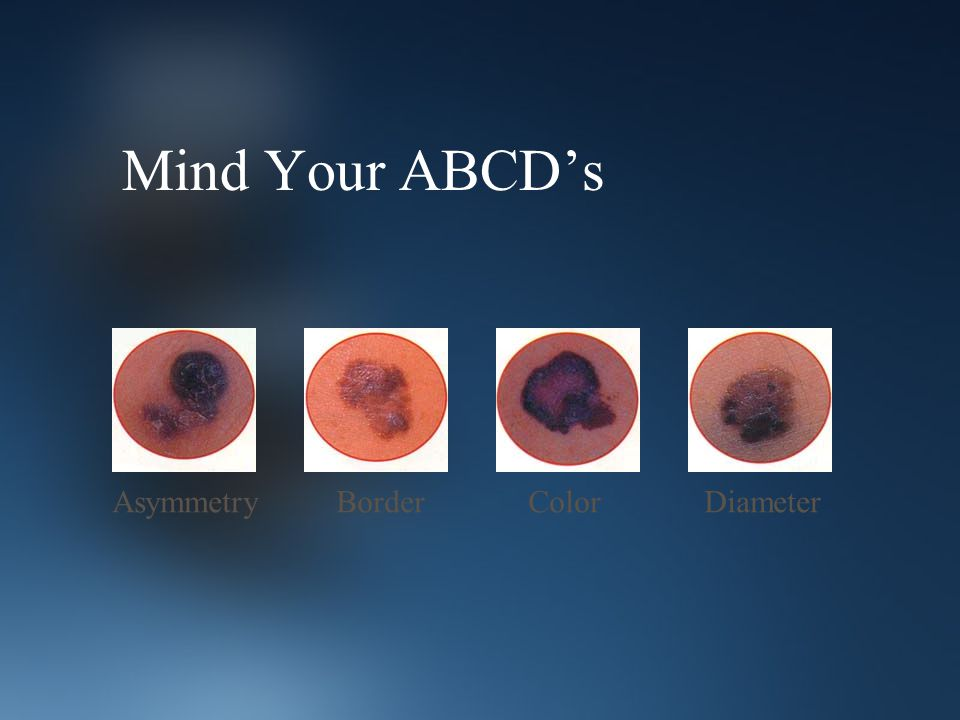 Mind Your ABCD's AsymmetryColorBorderDiameter