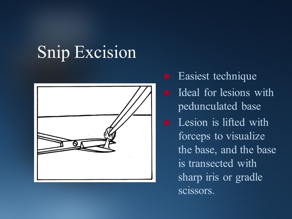 Snip Excision Easiest technique Ideal for lesions with pedunculated base Lesion is lifted with forceps to visualize the base, and the base is transect
