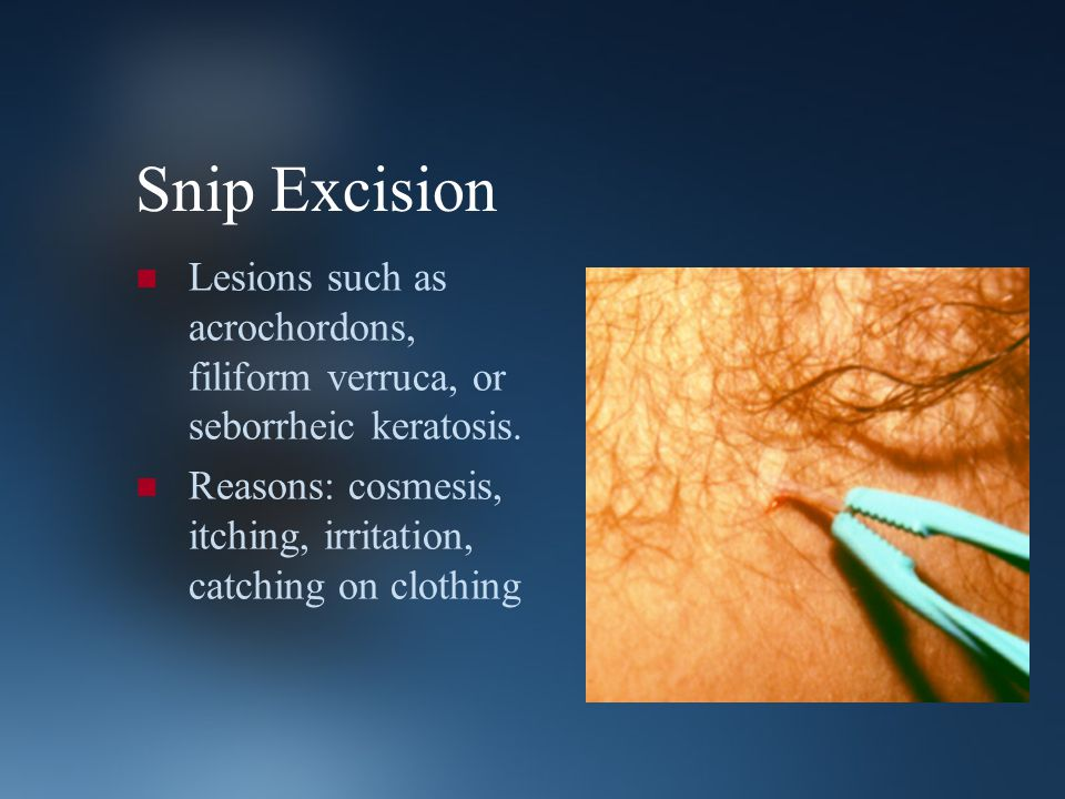 Snip Excision Lesions such as acrochordons, filiform verruca, or seborrheic keratosis. Reasons: cosmesis, itching, irritation, catching on clothing