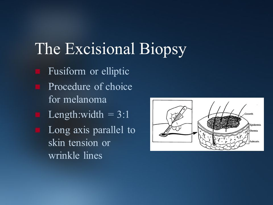 The Excisional Biopsy Fusiform or elliptic Procedure of choice for melanoma Length:width = 3:1 Long axis parallel to skin tension or wrinkle lines