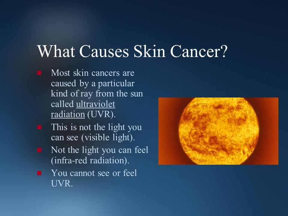 What Causes Skin Cancer? Most skin cancers are caused by a particular kind of ray from the sun called ultraviolet radiation (UVR). This is not the lig