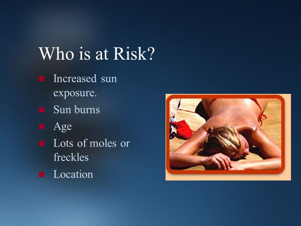 Who is at Risk? Increased sun exposure. Sun burns Age Lots of moles or freckles Location