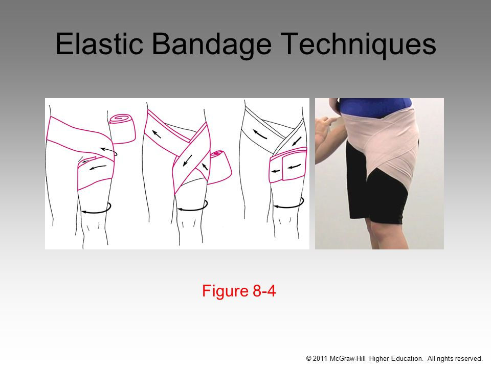 Elastic Bandage Techniques Figure 8-4 © 2011 McGraw-Hill Higher Education. All rights reserved.