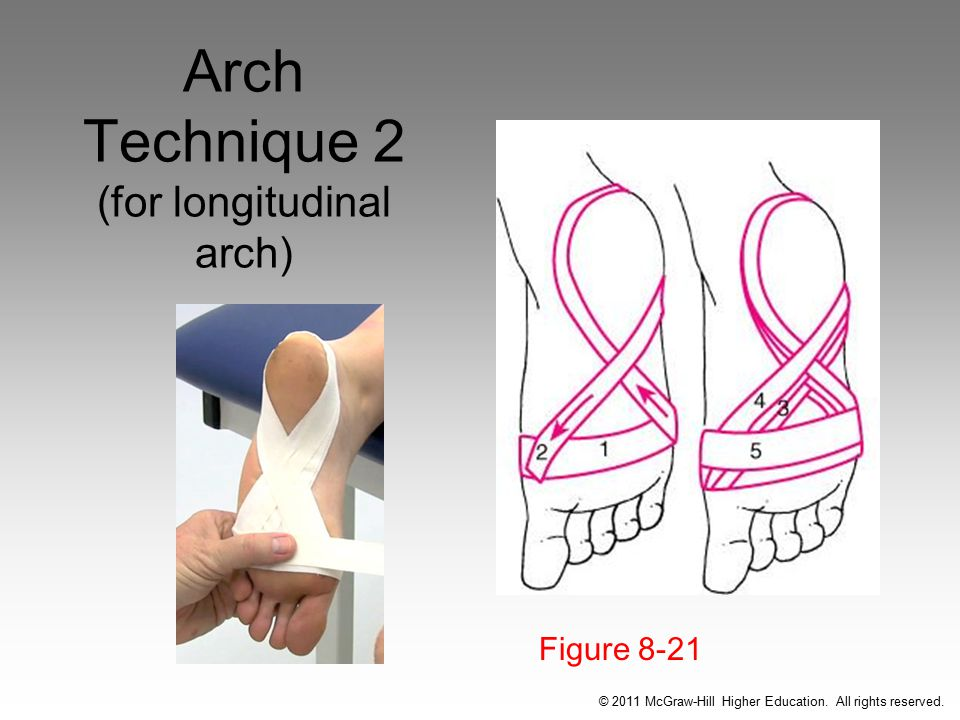 Arch Technique 2 (for longitudinal arch) Figure 8-21 © 2011 McGraw-Hill Higher Education.