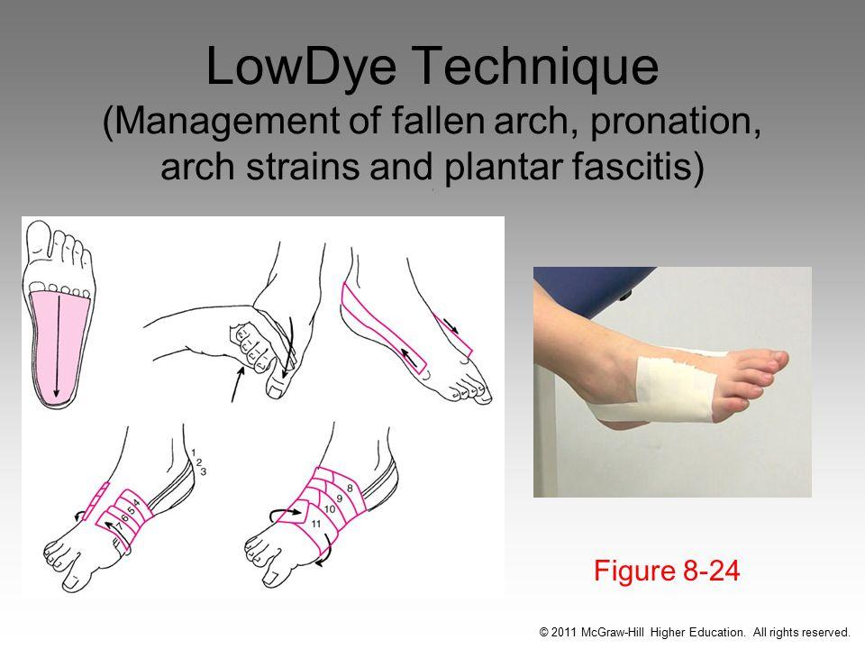 LowDye Technique (Management of fallen arch, pronation, arch strains and plantar fascitis) ( Figure 8-24 © 2011 McGraw-Hill Higher Education.