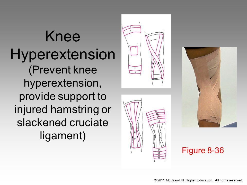 Knee Hyperextension (Prevent knee hyperextension, provide support to injured hamstring or slackened cruciate ligament) Figure 8-36 © 2011 McGraw-Hill Higher Education.