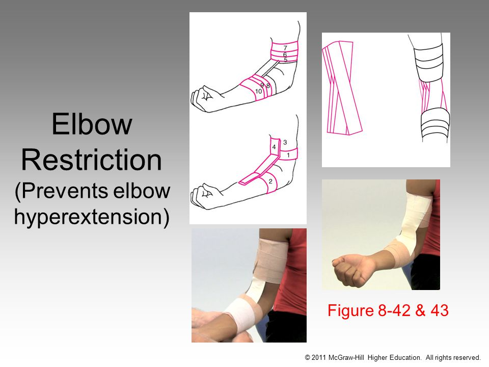 Elbow Restriction (Prevents elbow hyperextension) Figure 8-42 & 43 © 2011 McGraw-Hill Higher Education.