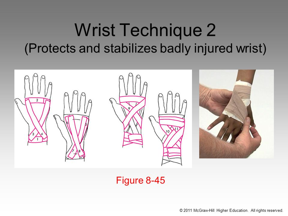 Wrist Technique 2 (Protects and stabilizes badly injured wrist) Figure 8-45 © 2011 McGraw-Hill Higher Education.