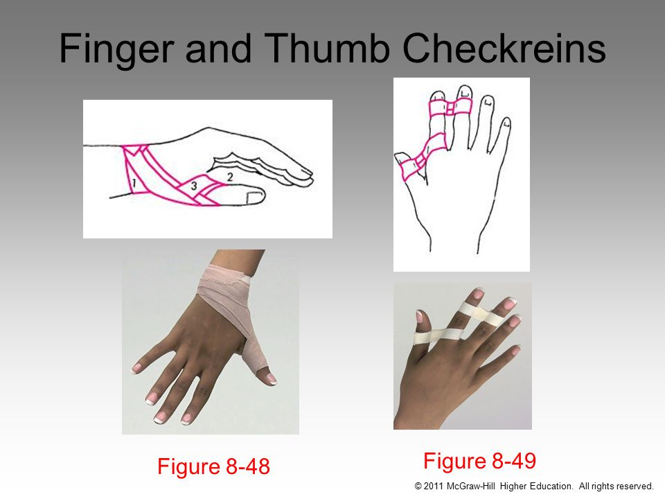 Finger and Thumb Checkreins Figure 8-49 Figure 8-48 © 2011 McGraw-Hill Higher Education.
