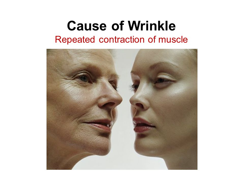Cause of Wrinkle Repeated contraction of muscle
