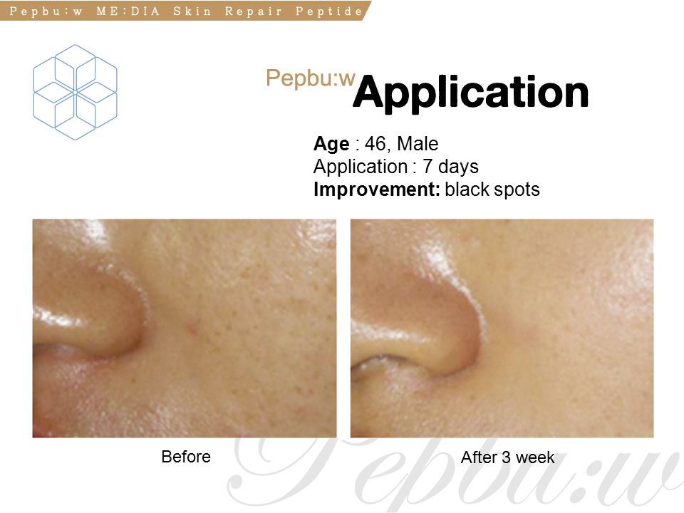 Age : 46, Male Application : 7 days Improvement: black spots Before After 3 week