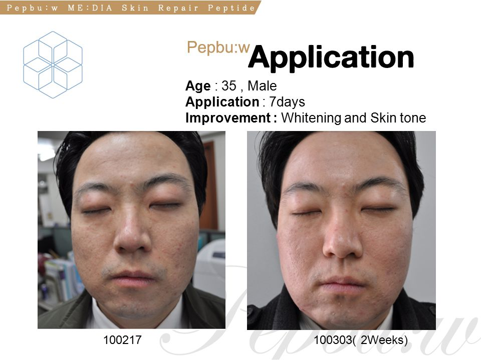 100217100303( 2Weeks) Age : 35, Male Application : 7days Improvement : Whitening and Skin tone